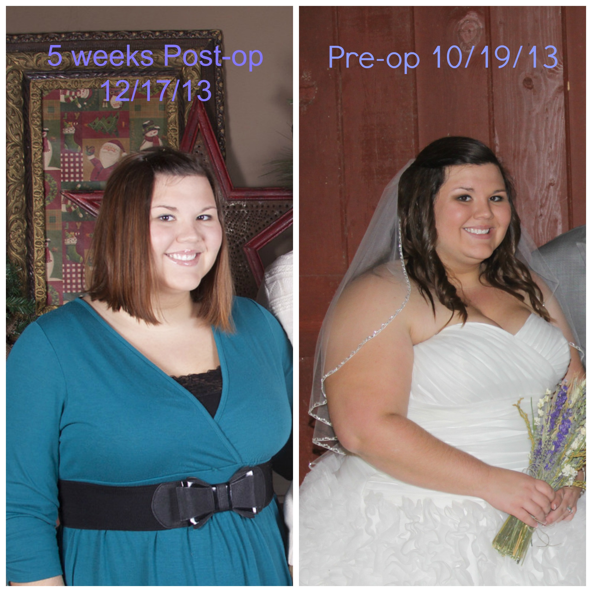 First Comparison Photo